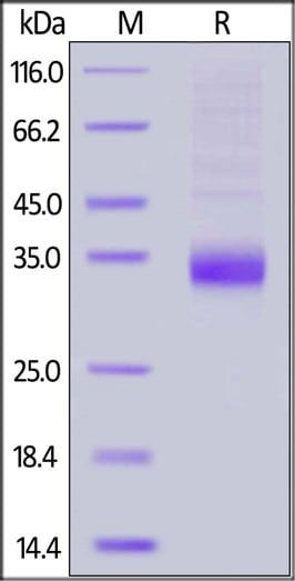 SDS-PAGE - Recombinant Human Angiopoietin-like 4/ANGPTL4 protein (His tag) (ab191677)