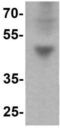 Western blot - Anti-IFIT3/P60 antibody - C-terminal (ab191689)