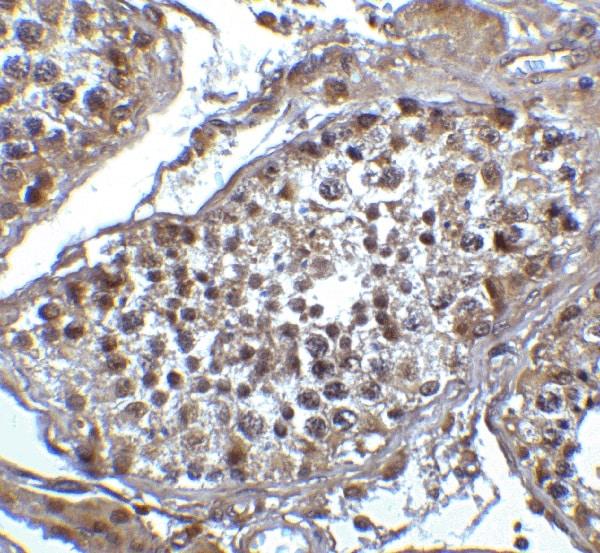 Immunohistochemistry (Formalin/PFA-fixed paraffin-embedded sections) - Anti-TET1 antibody - C-terminal (ab191698)