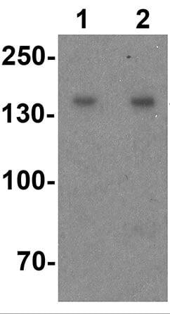 Western blot - Anti-WAPL/FOE antibody - N-terminal (ab191836)