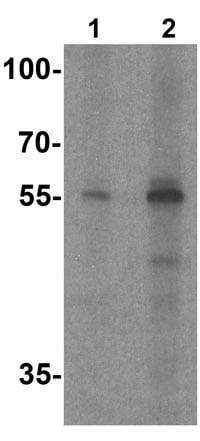 Western blot - Anti-Skn1 antibody - C-terminal (ab191840)
