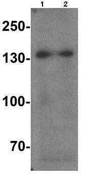 Western blot - Anti-SREBP1 antibody (ab191857)