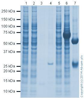 Immunoprecipitation - Anti-GFP VHH Single Domain antibody (Sepharose) (ab191863)