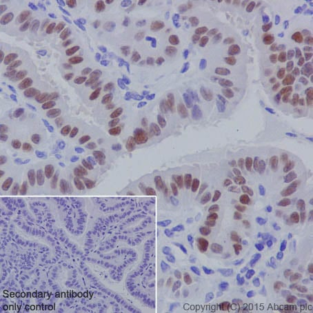 Immunohistochemistry (Formalin/PFA-fixed paraffin-embedded sections) - Anti-PAX8 antibody [EPR18715] (ab191870)