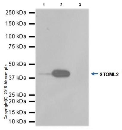 Immunoprecipitation - Anti-SLP-2 antibody [EPR18718] (ab191883)