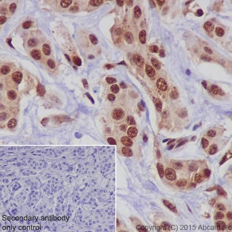 Immunohistochemistry (Formalin/PFA-fixed paraffin-embedded sections) - Anti-CIRP antibody [EPR18783] (ab191885)