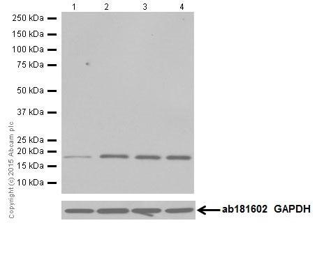 Western blot - Anti-CIRP antibody [EPR18783] (ab191885)