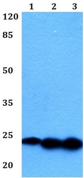 Western blot - Anti-Interferon alpha 1 antibody (ab191903)