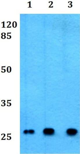 Western blot - Anti-CD8 beta antibody (ab191905)