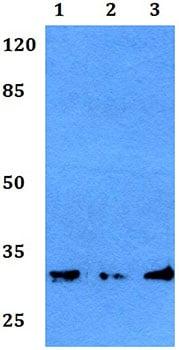 Western blot - Anti-GJB5 antibody (ab191911)