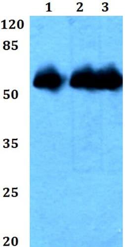 Western blot - Anti-Repulsive Guidance Molecule B antibody (ab191916)