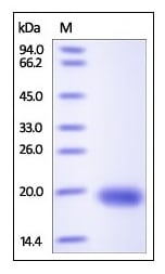 SDS-PAGE - Recombinant human VEGFD protein (ab191939)