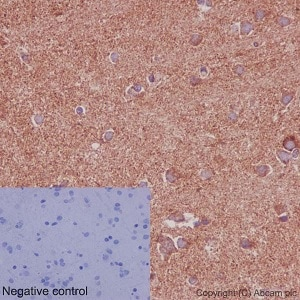 Immunohistochemistry (Formalin/PFA-fixed paraffin-embedded sections) - Anti-NDUFS2 antibody [EPR16266] (ab192022)