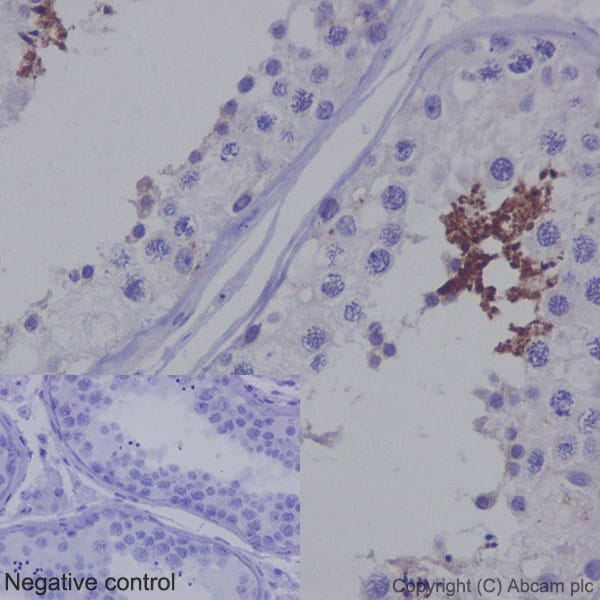 Immunohistochemistry (Formalin/PFA-fixed paraffin-embedded sections) - Anti-TSSK2 antibody [EPR16116] (ab192026)