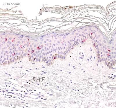 am j stem cells_Recombinant Anti-Langerin antibody [EPR15863] (ab192027) | Abcam