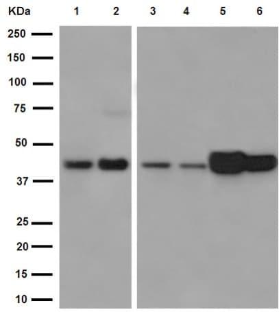 Western blot - Anti-Ym-1 + Ym-2 antibody [EPR15263] (ab192029)