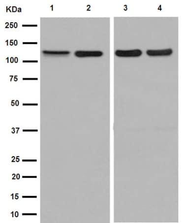 Western blot - Anti-TRPC1 antibody [EPR1417(2)] (ab192031)