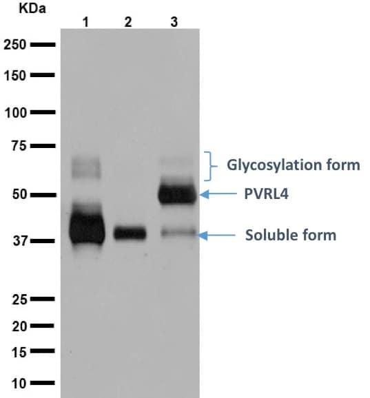 Western blot - Anti-Nectin-4 antibody [EPR15613-68] (ab192033)