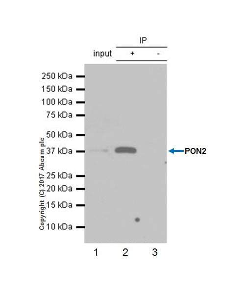 Immunoprecipitation - Anti-PON2 antibody [EPR18547-2] (ab192038)