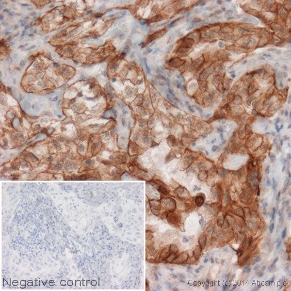 Immunohistochemistry (Formalin/PFA-fixed paraffin-embedded sections) - HRP Anti-Cytokeratin 7 antibody [EPR1619Y] - Cytoskeleton Marker (ab192079)