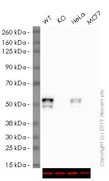Western blot - HRP Anti-Cytokeratin 7 antibody [EPR1619Y] - Cytoskeleton Marker (ab192079)