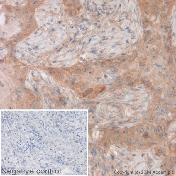 Immunohistochemistry (Formalin/PFA-fixed paraffin-embedded sections) - Anti-CDKN2A/p16INK4a antibody [EPR1473] (HRP) (ab192080)