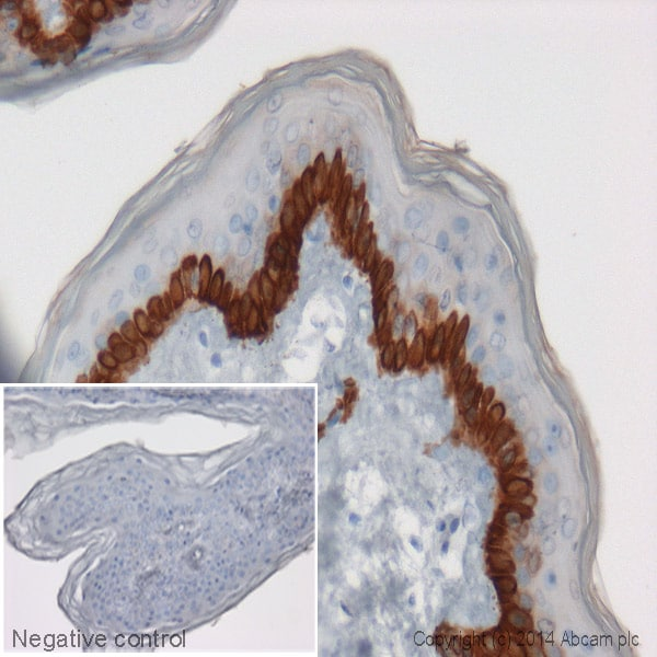 Immunohistochemistry (Formalin/PFA-fixed paraffin-embedded sections) - Anti-Cytokeratin 14 antibody [EP1612Y] (HRP) (ab192081)