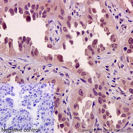 Immunohistochemistry (Formalin/PFA-fixed paraffin-embedded sections) - Anti-Axin 2 antibody [EPR2005(2)] - BSA and Azide free (ab192230)