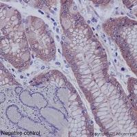 Immunohistochemistry (Formalin/PFA-fixed paraffin-embedded sections) - Anti-EEF2K (phospho S359) antibody [EPR2252(N)] (ab192257)