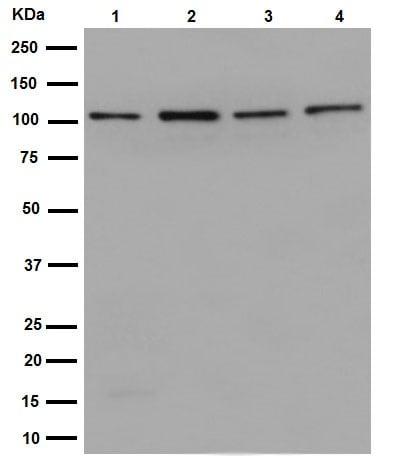 Western blot - Anti-DISC1 antibody [EPR14684] (ab192258)