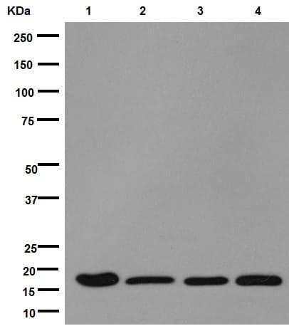Western blot - Anti-DSTN antibody [EPR15828] (ab192262)