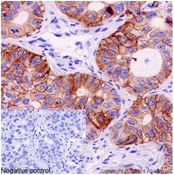 Immunohistochemistry (Formalin/PFA-fixed paraffin-embedded sections) - Anti-EGFR (mutated L858 R) antibody [EPR15348] (ab192263)