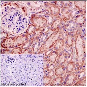 Immunohistochemistry (Formalin/PFA-fixed paraffin-embedded sections) - Anti-IPP antibody [EPR15575] (ab192266)