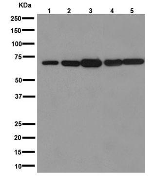 Western blot - Anti-IPP antibody [EPR15575] (ab192266)