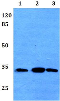 Western blot - Anti-FSBP antibody (ab192302)