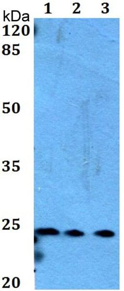 Western blot - Anti-MED29/med2 antibody (ab192309)