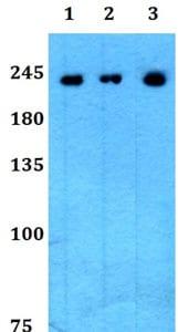 Western blot - Anti-Plexin A2 antibody (ab192317)