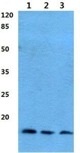 Western blot - Anti-ANP32D antibody (ab192320)