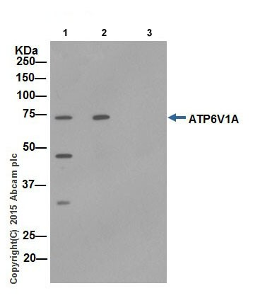 Immunoprecipitation - Anti-ATP6V1A antibody (ab192355)