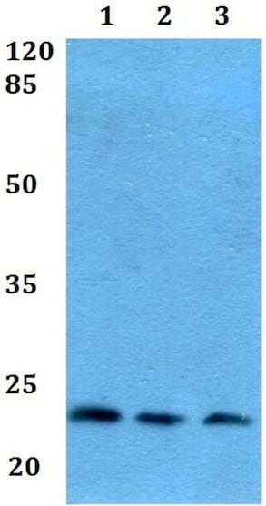 Western blot - Anti-Prostaglandin D Synthase (hematopoietic) antibody (ab192360)
