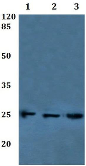 Western blot - Anti-RalB antibody (ab192363)