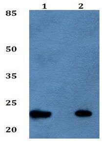 Western blot - Anti-TM2D1/BBP antibody (ab192380)