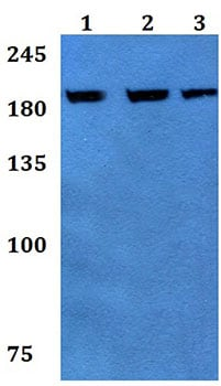 Western blot - Anti-ABCA9 antibody (ab192386)