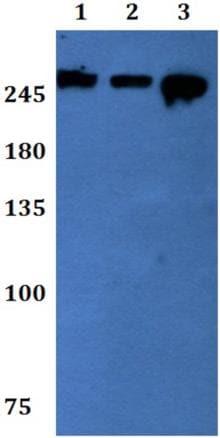 Western blot - Anti-WNK2 antibody (ab192397)