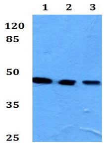 Western blot - Anti-Kir4.1/KCNJ10 antibody (ab192406)