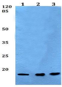 Western blot - Anti-POLR2I antibody (ab192407)
