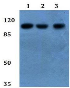 Western blot - Anti-Desmoglein 4 antibody (ab192408)