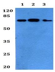 Western blot - Anti-Fibulin 1 antibody (ab192417)