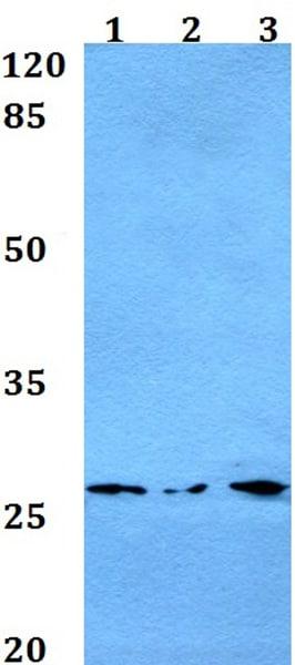 Western blot - Anti-MT-ATP6 antibody (ab192423)