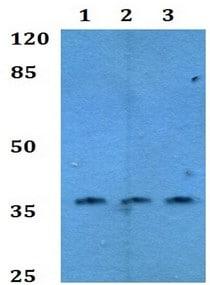 Western blot - Anti-HOXC12 antibody (ab192427)